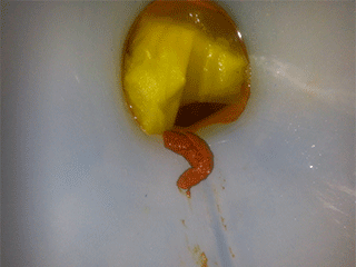 дедская какашка форме креветки из жопы
