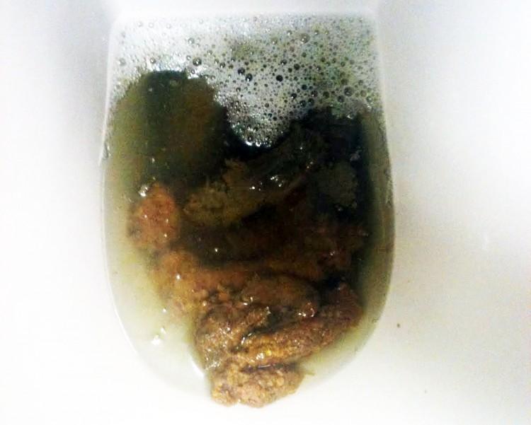 Какашка Какашки и моча в одном туалете.