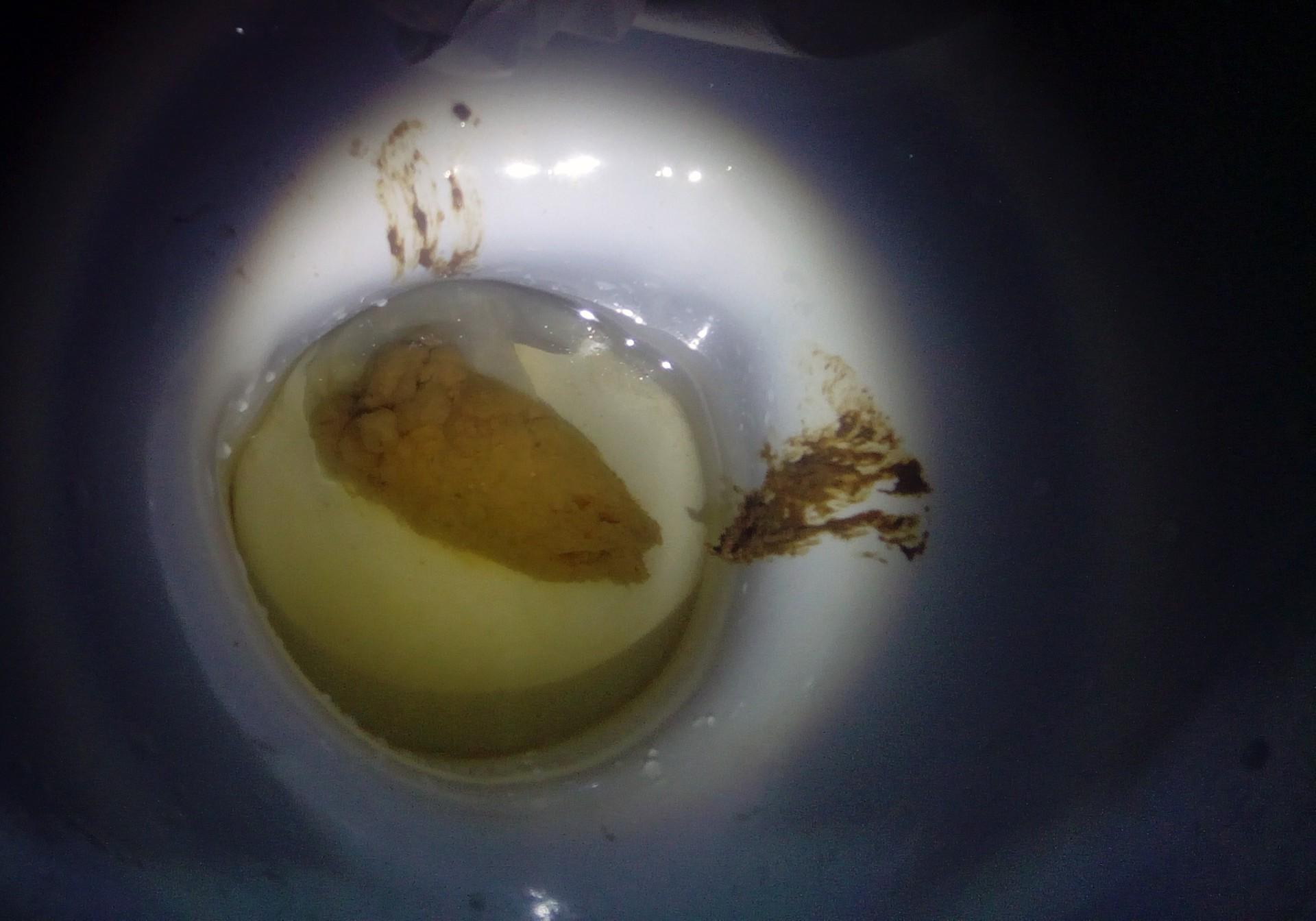 Очень очень очень толстая какашка в форме огромной водородной бомбы. Разрыв мозга , взрыв сознания и туалет зацепило в двух местах.